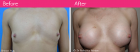 Breast-Aug-Dr-Rebecca-Whyten-Patient-1-Front