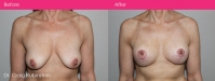 breast lift before and after procedure