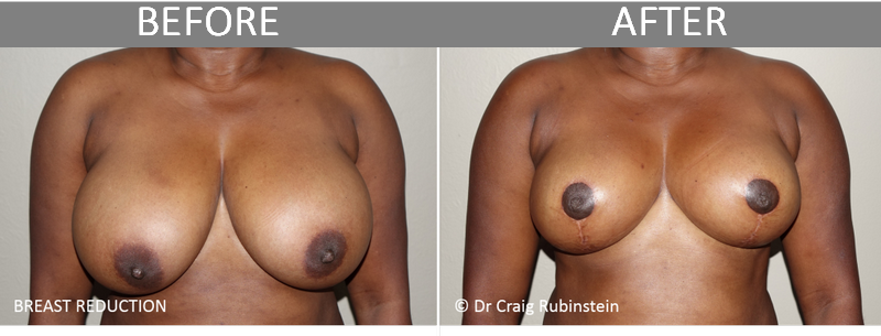 before-after-photo-breast-reduction-surgery-craig-melbourne12
