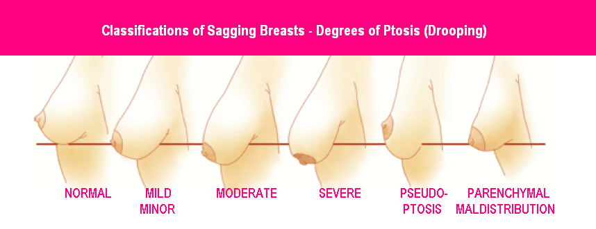 breast-ptosis-degrees-of-breast-drooping breast lift with implants