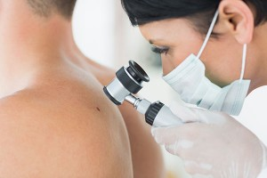 skin cancer removal surgery melbourne