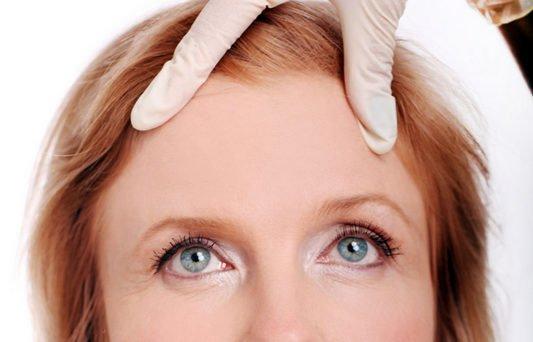 facelift-and-browlift-eyelidlift-blepharoplasty