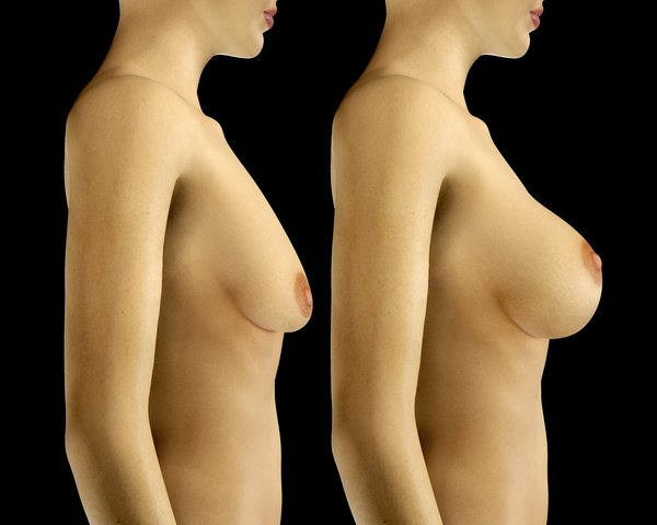 3d breast aug