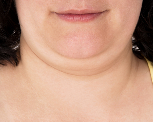 neck lift candidate has a double chin