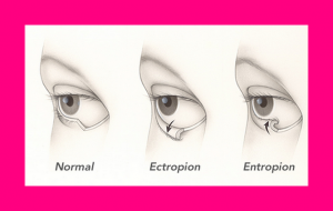 entropian or ectropian eye lid conditions, eyelashes irritating eyes