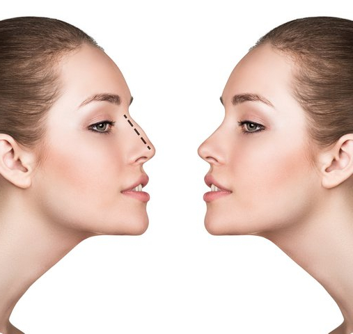 rhinoplasty-nose-surgery-melbourne