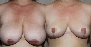 plastic surgeons melbourne