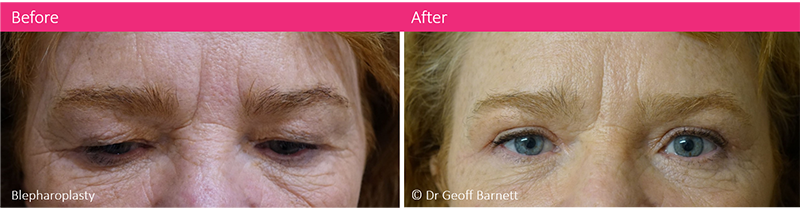 blepharoplasty-surgery-dr-geoff-barnett-before-and-after-melbourne