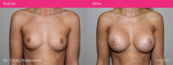 breast-augmentation-dr-craig-rubinstein-before-after-photo-40