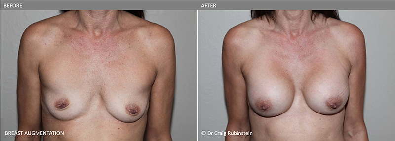 breast-augmentation-dr-craig-rubinstein-before-after-photo-5