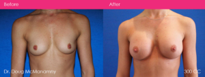 breast-augmentation-surgery-dr-doug-mcmanamny-before-and-after-melbourne