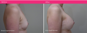 breast-augmentation-implants-dr-Geoff-Barnett-before-after-photo-4