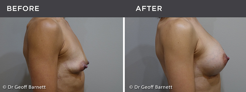 breast augmentation surgery before and after photos - results, Melbourne surgeons for breast implants