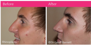 rhinoplasty-dr-geoff-barnett-before-and-after-melbourne