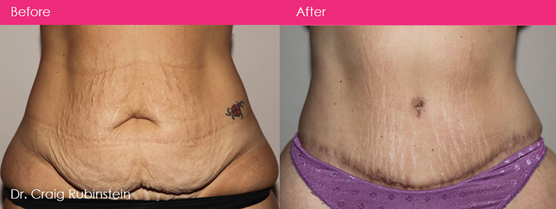 tummy-tuck-surgery-dr-craig-rubinstein-before-and-after-melbourne