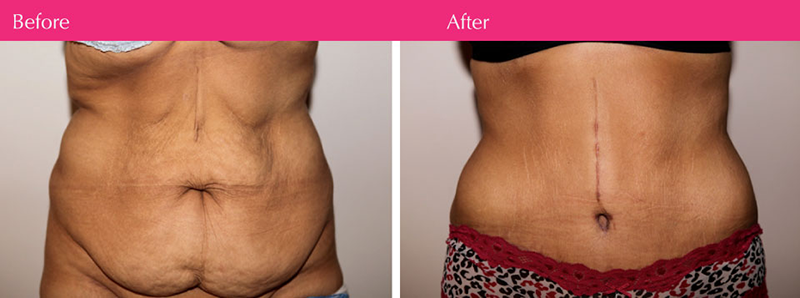 tummy-tuck-abdominoplasty-before-and-after-melbourne