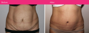 tummy-tuck-plastic-surgeons-before-after-photo-8
