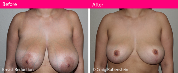 Breast Reduction - Before and After Photos - Melbourne Dr Craig Rubinstein Cosmetic Surgery for women and men