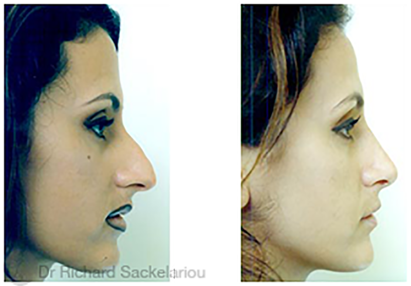 rhinoplasty-surgery-dr-richard-sackelariou-before-and-after-melbourne