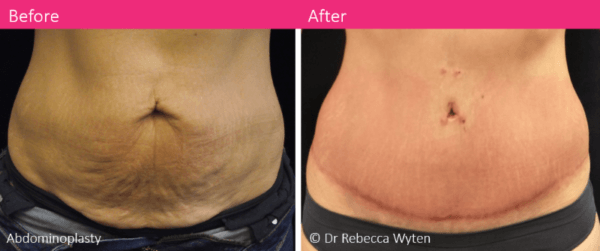 abdominoplasty-surgery-dr-rebecca-wyten-before-and-after-melbourne