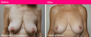 mastopexy-surgery-dr-rebecca-wyten-before-and-after-melbourne