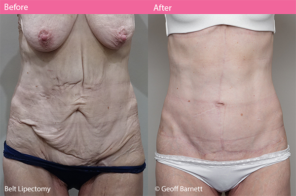 belt lipectomy before and after dr geoff barnett