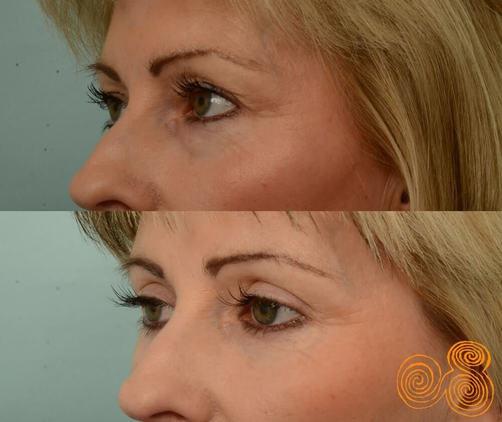 blepharoplasty-before-and-after-45-year-old-female-subiaco-Perth-Dr Patrick Briggs
