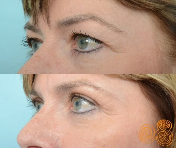 blepharoplasty-before-and-after-48-year-old-female-subiaco-Perth-Dr Patrick Briggs2