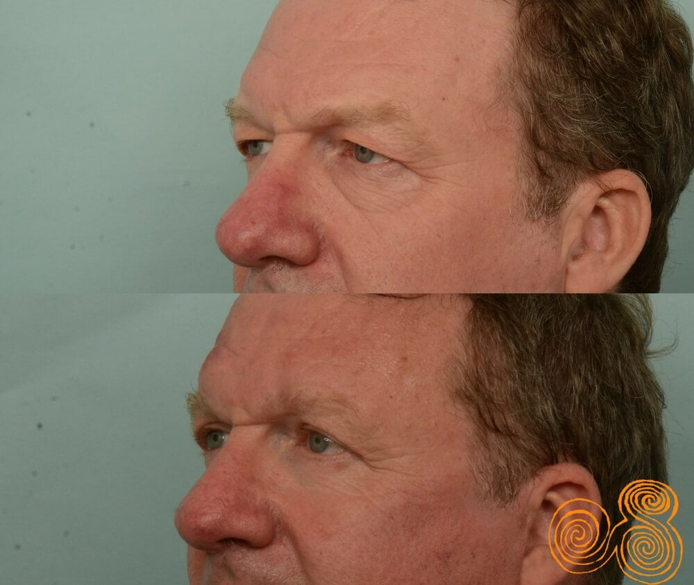 blepharoplasty-before-and-after-60-year-old-male-subiaco-Perth-Dr Patrick Briggs-b