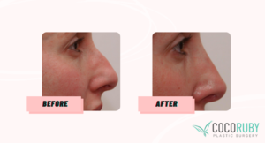 Coco Ruby Blog - Before and After Nose Surgery Sample Gallery Image