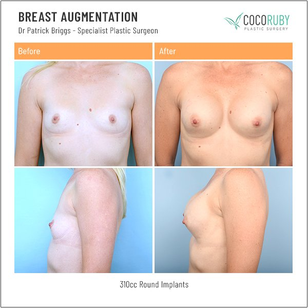 breast-augmentation-before-and-after-dr-patrick-briggs-61