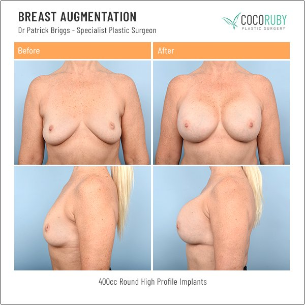 breast-augmentation-before-and-after-dr-patrick-briggs-63