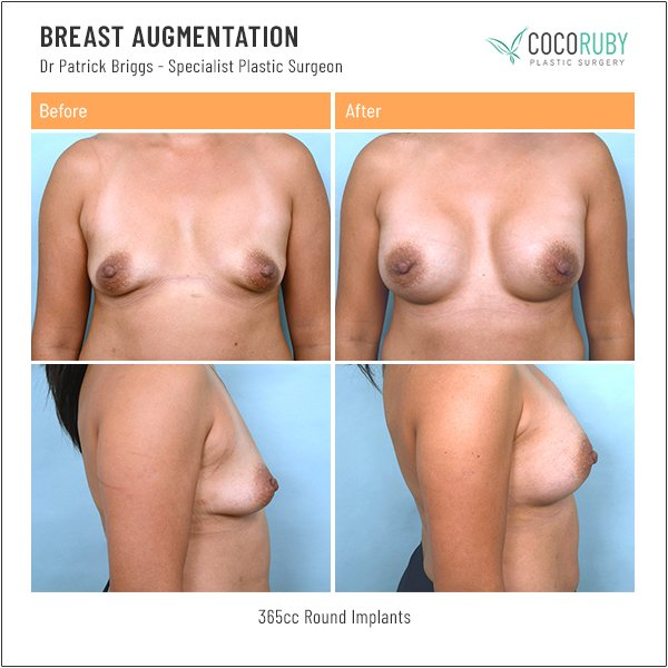 breast-augmentation-before-and-after-dr-patrick-briggs-78