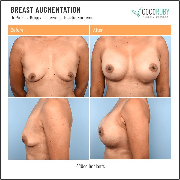 breast-augmentation-before-and-after-dr-patrick-briggs-8