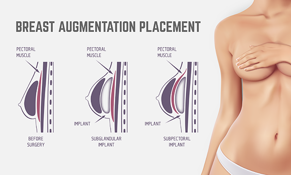 Breast Augmentation offer and placement