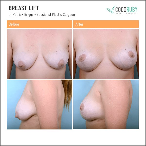 breast-lift-before-and-after Plastic Surgery dr-patrick-briggs-16