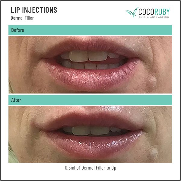 Lip Injections